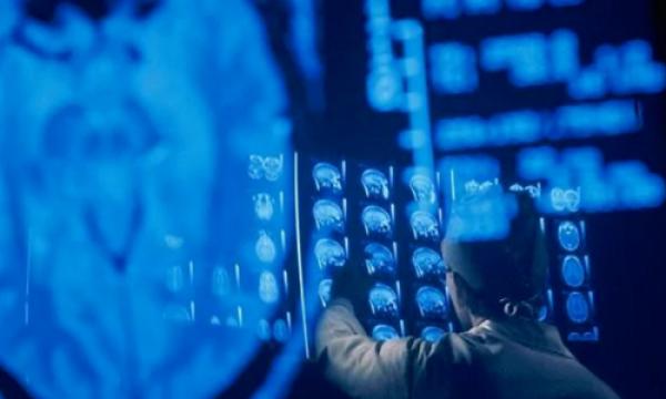 Các máy chụp ảnh não sẽ tìm kiếm dấu hiệu sự hồi sinh ở các bệnh nhân chết não. Ảnh: Telegraph